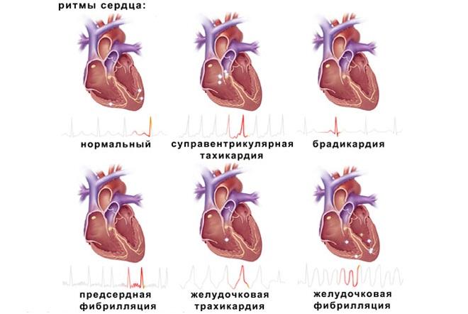 Ритмы сердца