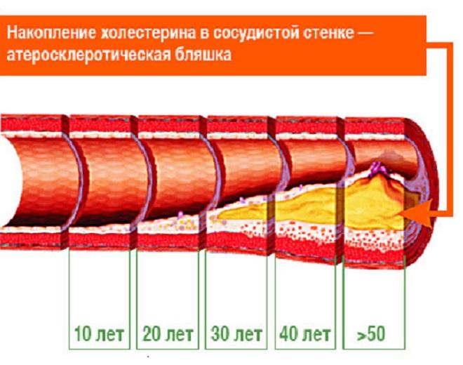 Атеросклеротическая бляшка