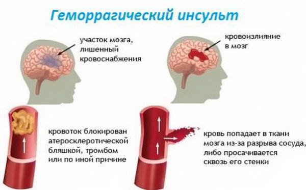 Геморрагический инсульт развитие