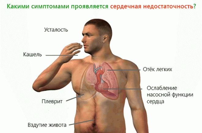 Основные симптомы сердечной недостаточности