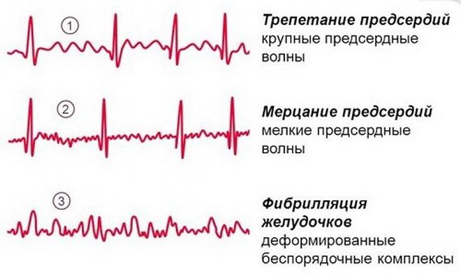 Разные виды аритмии на ЭКГ