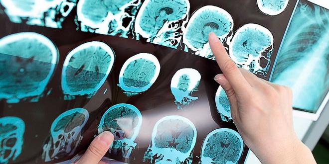 Анализ снимков мозга
