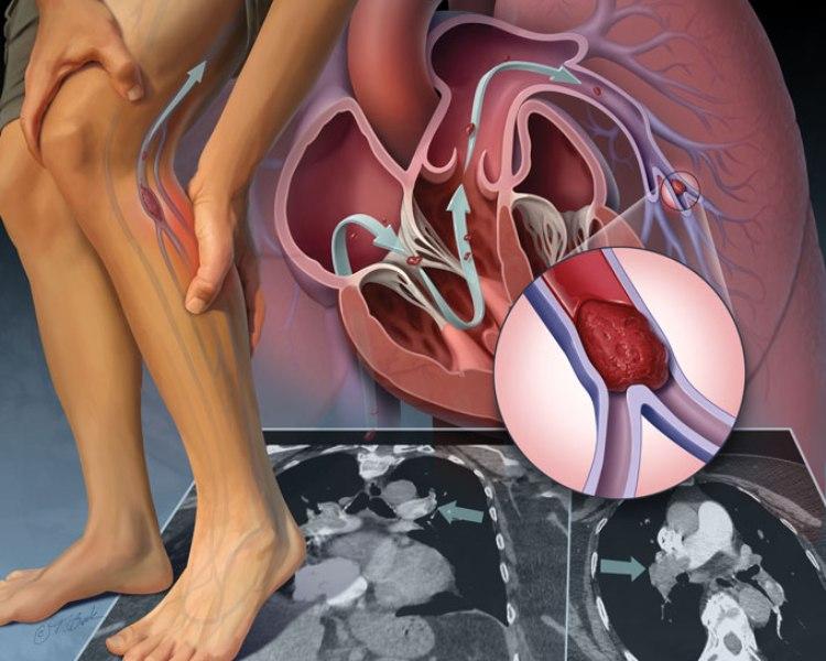 Артериальная тромбоэмболия конечностей