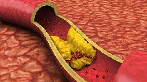 Нестенозирующий атеросклероз БЦА - что это такое?