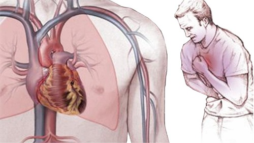 стенокардия симптомы миниатюра