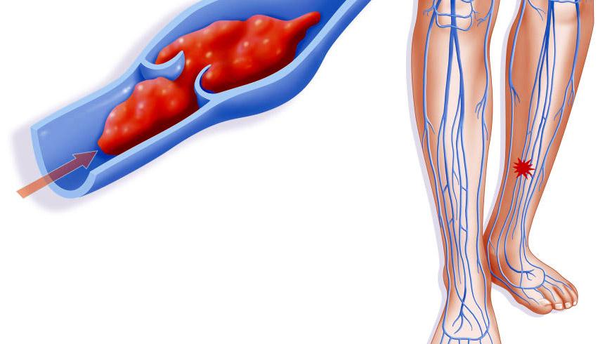 Тромбоз часто возникает в нижних конечностях