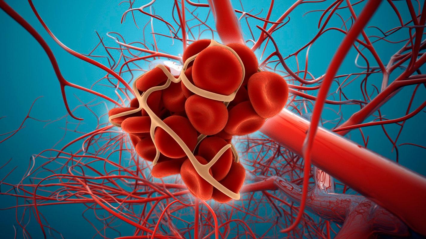 Тромбоэмболия нижних конечностей: возможные причины, симптомы и особенности лечения
