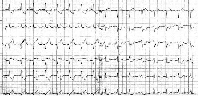 ЭКГ инфаркт