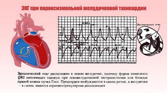 ЭКГ при пароксизмальной тахикардии