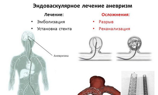Эндоваскулярное лечение аневризм