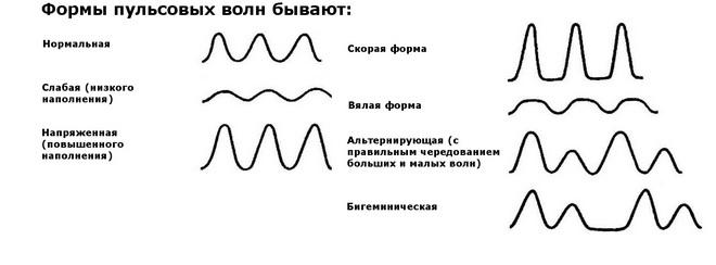 Формы пульсовых волн