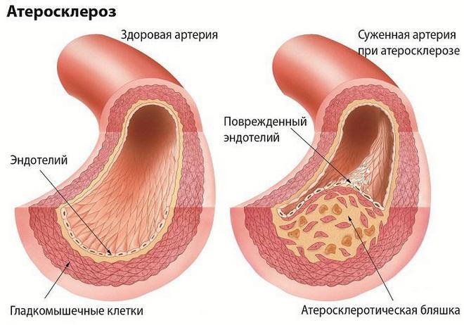 Генерализованный атеросклероз