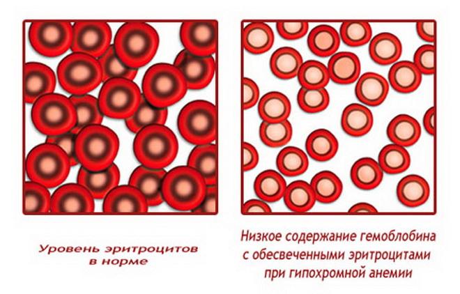Гипрохомная анемия
