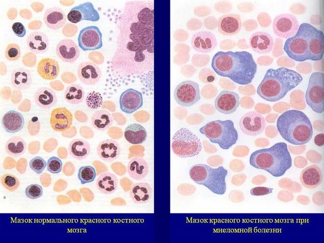Как проявляется миеломная болезнь