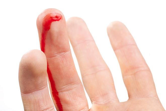 Таблетки от кровотечения: перечень самых эффективных препаратов