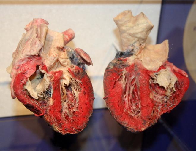 Поражение сердечной системы
