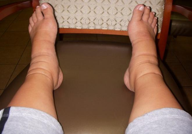 Сердечные отеки ног