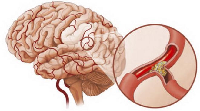 Склероз сосудов головного мозга
