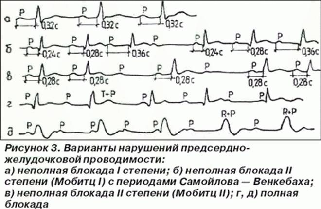Варианты нарушений сердечной проводимости