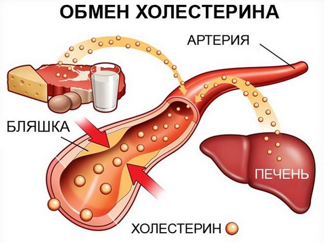 Высокий холестерин