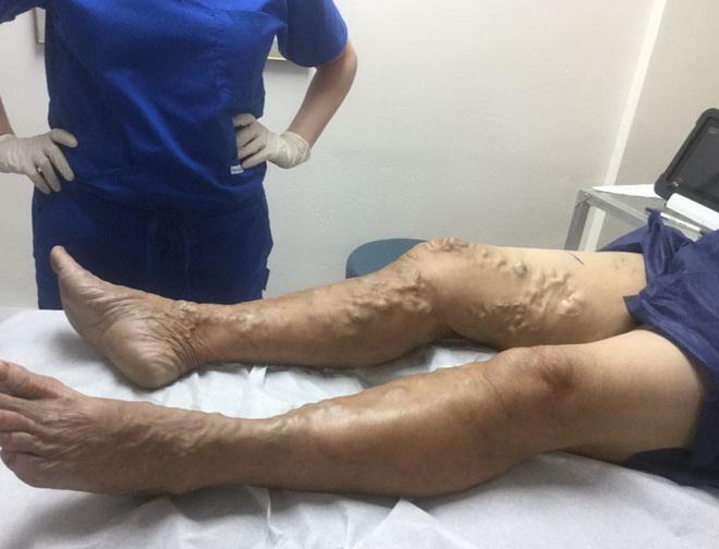 Чем мазать ноги при варикозе