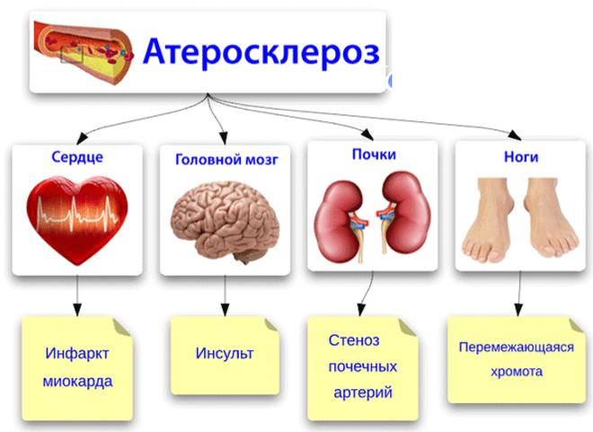 Атеросклероз - последствия