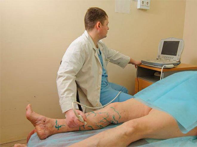 Диагностика врача флеболога