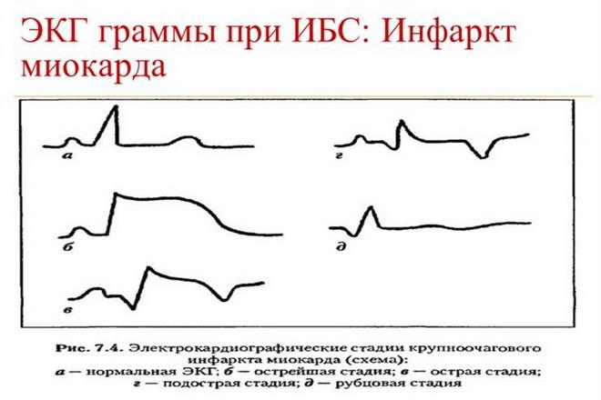 ЭКГ: инфаркт миокарда