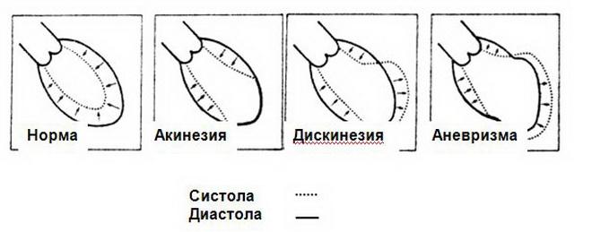Формирование аневризмы