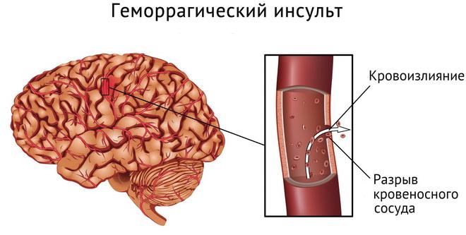 Геморрагический инсульт мозга