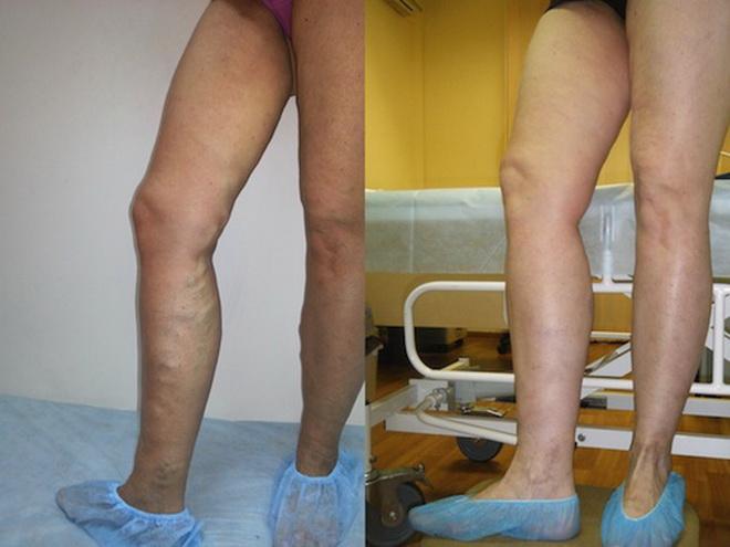 Лазерное лечение варикозом