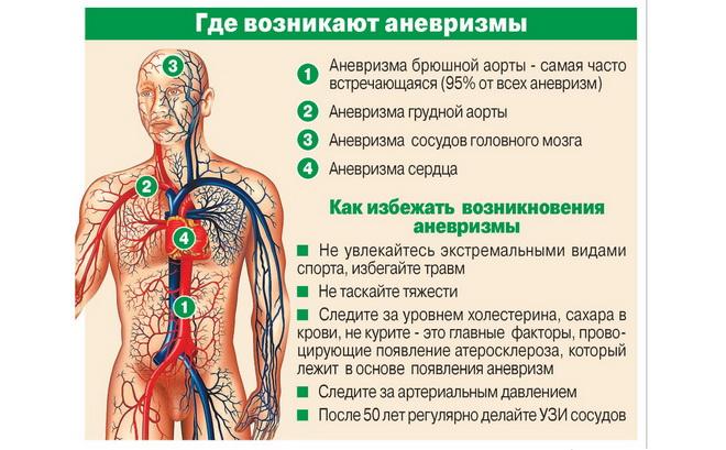 Места расположения аневризм