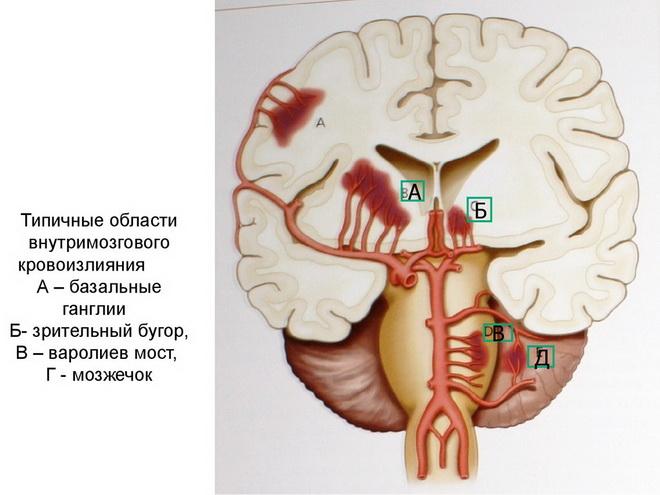 Места внутримозговых кровоизлияний