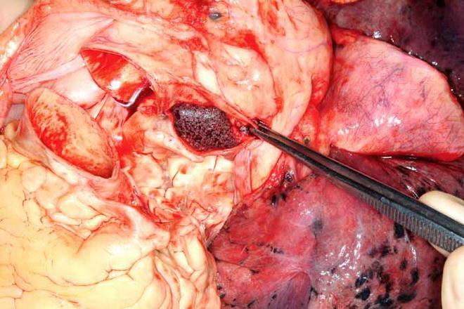 Причины развития жировой эмболии