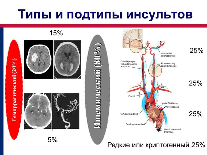 Типы и подтипы инсультов