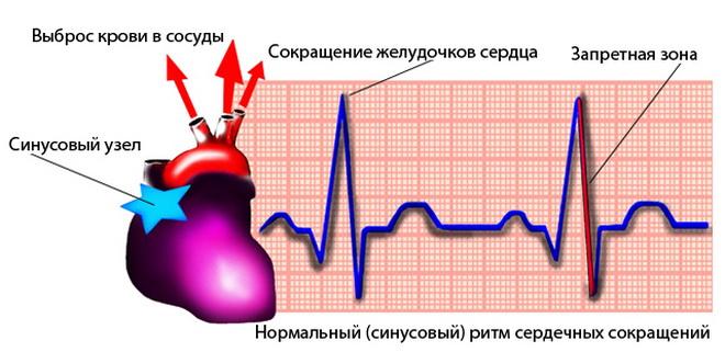 Выраженная синусовая аритмия