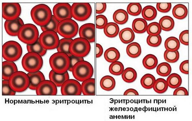 Эритроциты при железодефицитной анемии