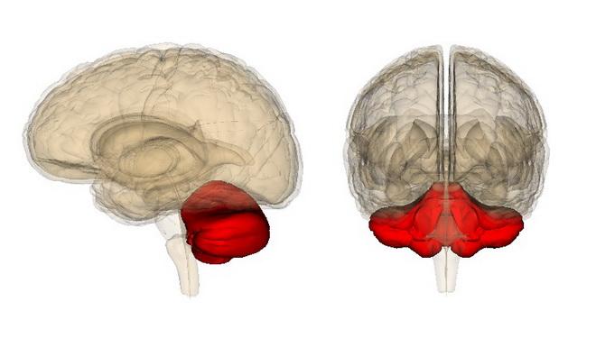 Инфаркт мозжечка