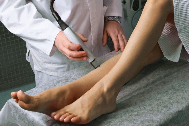 Лазерная операция на варикоз