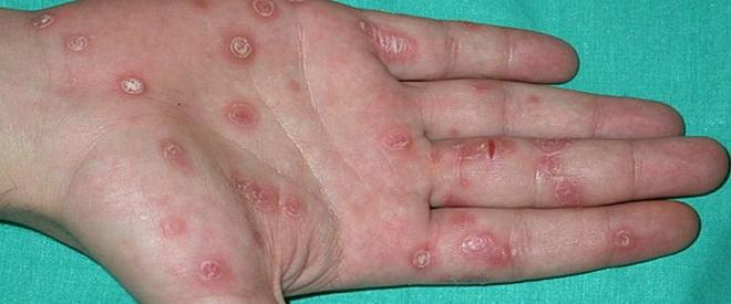 Проявление сифилиса
