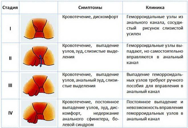 Стадии развития тромбоза геморроидального узла