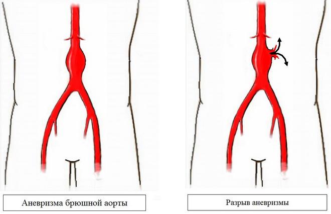 Аневризма брюшной аорты