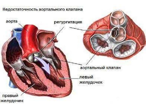 Недостаточность клапана аорты