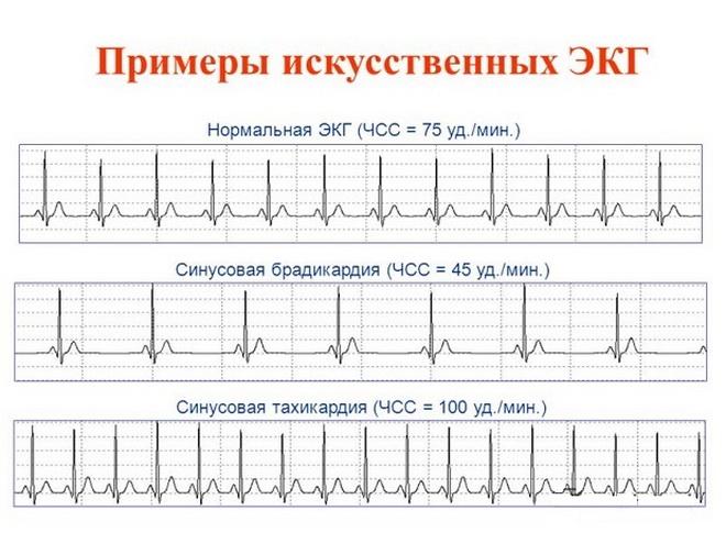 Примеры ЭКГ