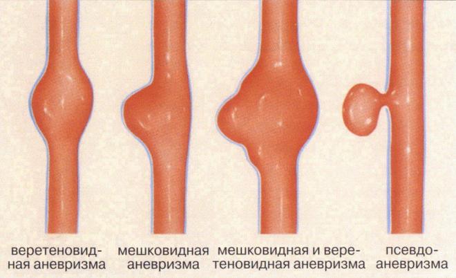 Виды аневризм