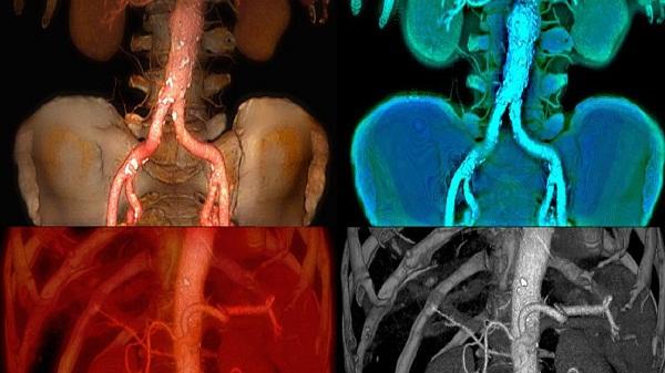 Аневризма селезеночной артерии миниатюра