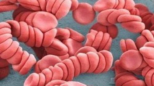 Болезнь полицитемия