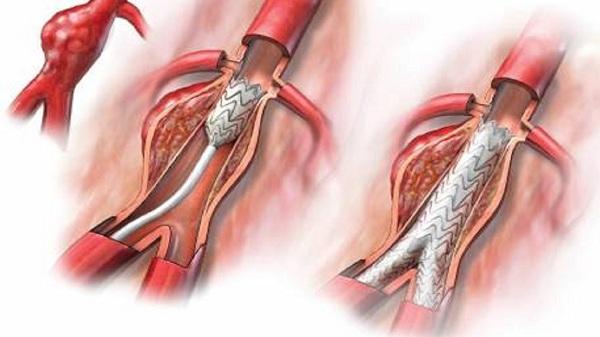 аневризма аорты брюшной полости миниатюра