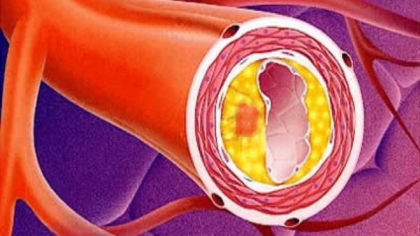 атеросклероз сердца миниатюра