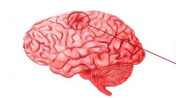 эмболия сосудов головного мозга миниатюра